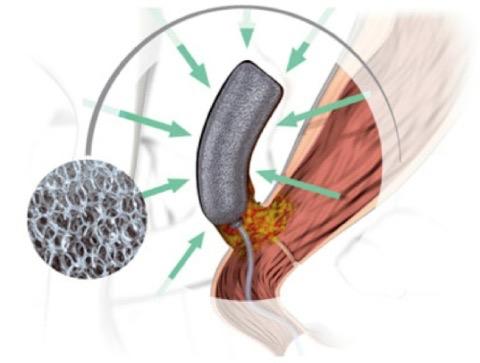 Fig. 3 - La pressione esercitata si distribuisce equamente a tutta la superficie dell'Endo-SPONGE e di conseguenza al tessuto in contiguità con esso