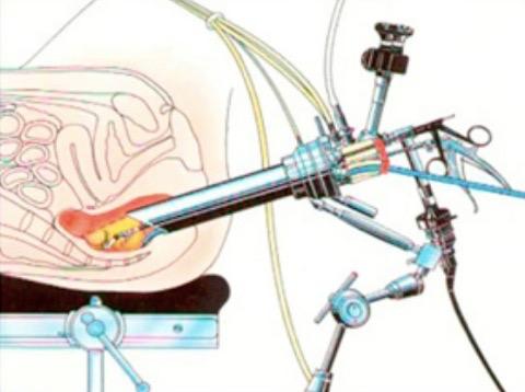 Posizionamento della strumentazione per Transanal Endoscopic Microsurgery