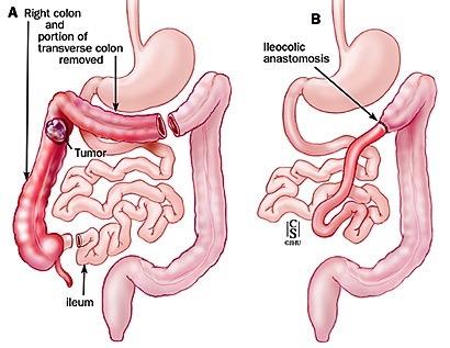 Emicolectomia destra allargata ed ileotrasverso anastomosi con legatura della arteria colica destra e media