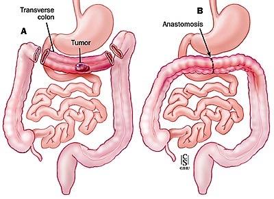 Resezione del trasverso con legatura della arteria colica media