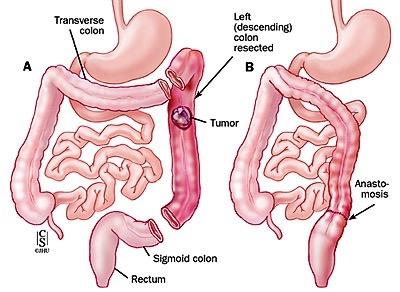 Emicolectomia sinistra con legatura della arteria mesenterica inferiore