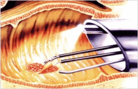 Close-up del della strumentazione per Transanal Endoscopic Microsurgery in azione